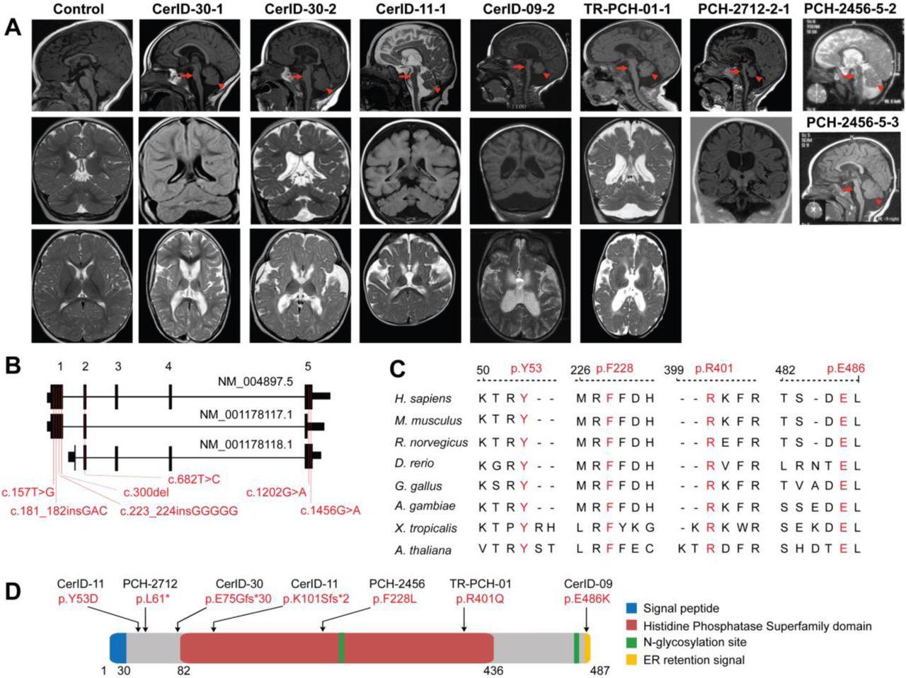 Biallelic mutations in MINPP1 cause a distinct PCH phenotype. (A) Midline sagittal (top), coronal (middle) and axial (bottom) brain MRIs of control and patients from families CerID-30, CerID-11, CerID-09 and TR-PCH-01 respectively. Only sagittal (top) and coronal (middle) brain MRIs were available for the patient from the family PCH-2712 and sagittal brain MRI for the patients from PCH-2456 (top and middle). Sagittal MRIs show variable degree of brain stem (arrow) and cerebellar atrophy/hypoplasia (arrowhead). ( B) Schematic representation of the MINPP1 transcripts: NM_004897.5, NM_001178117.1 and NM_001178118.1 respectively. Exon numbers for the longest isoform NM_004897.5 are indicated above the schematic representation. Mutations are shown relative to their cDNA (NM_004897.5) position. ( C) Multiple-sequence alignment of MINPP1 from different species. Variant amino-acid residues p.Y53, p.F228, p.R401 and p.E486 are evolutionarily conserved. ( D) Linear schematic representation of MINPP1, showing the position of mutations with respect to predicted protein domains. Abbreviations used: Endoplasmic reticulum (ER).