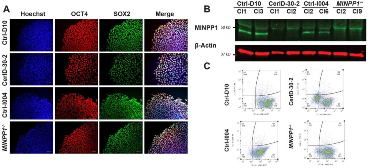 Characterization of patient-derived (CerID-30-2) and MINPP1 -/- iPSCs and their neural derivatives. (A) Immunofluorescence staining of embryonic stem cell markers OCT4 and SOX2 in control (Ctrl-D10 and Ctrl-I004), patient-derived (CerID-30-2), and MINPP1 -/- iPSCs. Hoechst was used as a nuclear stain. All scale bars correspond to 50μm. (B) Western blot data showing the absence of MINPP1 in patient-derived CerID-30-2 and MINPP1 -/- iPSCs. MINPP1 (48 kDa) is present in controls (D10 and I004) iPSC lines (lower band). β-actin is shown as loading control. (C) Flow cytometer analysis of P75 and HNK1 in control (Ctrl-D10 and Ctrl-I004), patient-derived (CerID-30-2) and MINPP1 -/- neural rosette cultures.