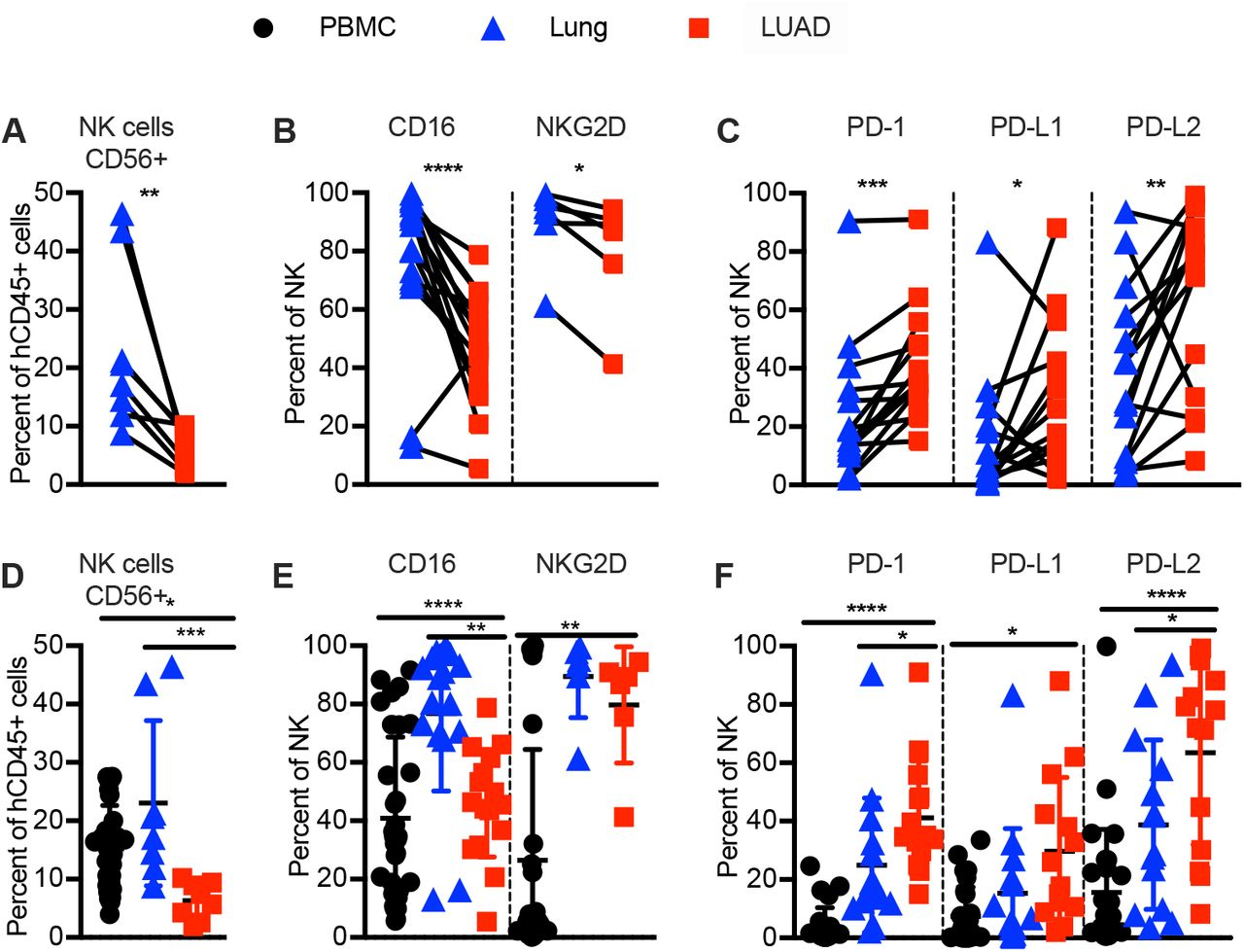 Human LUAD associated NK cells are exhausted in phenotype. Immune phenotyping of human NK cells in indicated tissues by flow cytometry. ( A, D ) Frequency of human NK cells (CD45 + CD3 − CD56 + ) in donor-matched lung vs. NSCLC (LUAD) tissue. ( B, E ) Frequency of CD16 and/or NKG2D expressing human NK cells, ( C, F ) Frequency of PD-1, PDL-1 and/or PDL-2-expressing human NK cells in donor-matched lung-tissue vs. LUAD ( A-C, top ), or LUAD-patient derived PBMC, lung tissue and LUAD ( D-F, bottom ). Each data point represents one genetically unrelated human donor (N= eight to 31 depending on tissue). Paired t-test for donor-matched lung tissue vs. LUAD, one-way ANOVA with post-hoc Tukey test for comparisons between LUAD-patient derived PBMC, lung tissue and LUAD (not always donor matched between all three tissues). *p