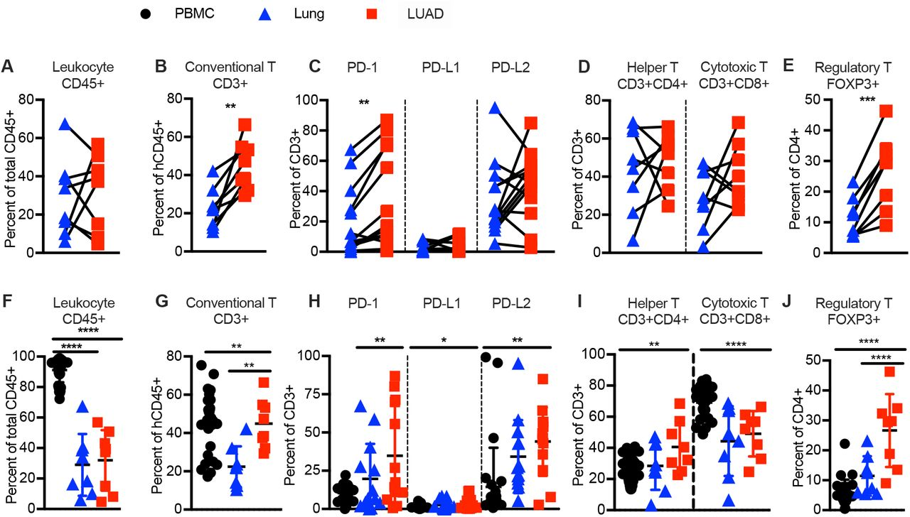 Human T cells are exhausted in phenotype and enriched in T regulatory cells in NSCLC (LUAD). Immune phenotyping of human immune cells and T cell subsets in indicated tissues by flow cytometry. ( A, F ) Frequencies of human hematopoietic cells (human CD45 + ), ( B, G ) conventional T cells (CD45 + CD3 + CD56 − ), ( C, H ) PD-1, PD-L1 and/or PD-L2 expressing conventional T cells, ( D, I ) T helper (CD45 + CD3 + CD4 + CD8 − CD56 − ), and CTL CD45 + CD3 + CD4 − CD8 + CD56 − subsets, ( E, J ) T-regulatory cell (CD45 + CD3 + CD4 + Foxp-3 + CD8 − CD56 − ) subset in donor-matched lung vs. NSCLC (LUAD) ( A-E, top ), or patient derived PBMC, lung tissue and LUAD ( F-J, bottom ). Each data point represents one genetically unrelated human donor (N= 8-31 depending on tissue, same donors as for Figure 1 ). Paired t-test for donor-matched lung tissue vs. LUAD, one-way ANOVA with post-hoc Tukey test for comparisons between LUAD-patient derived PBMC, lung tissue and LUAD (not always donor matched between all three tissues). *p