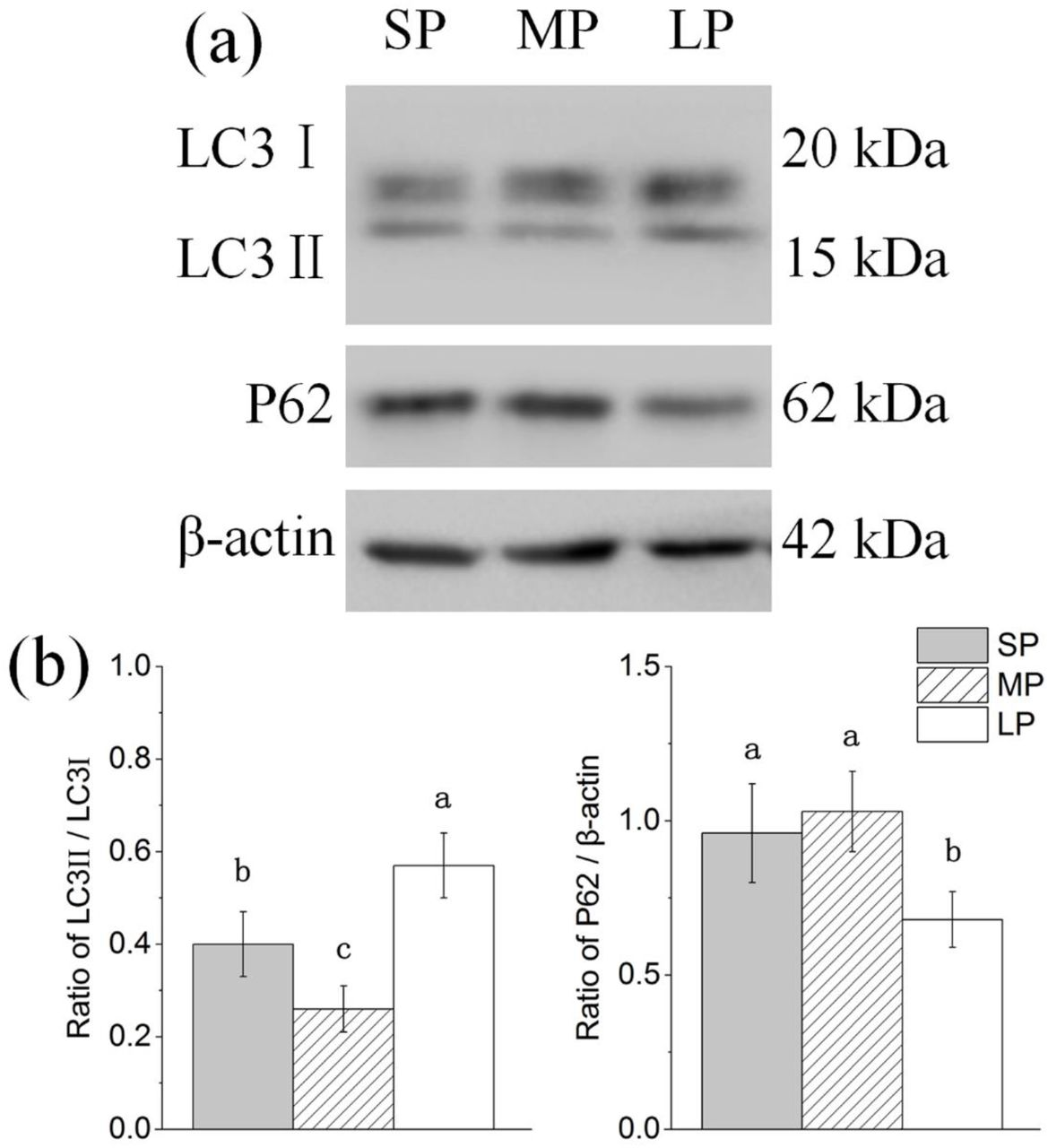 Changes in protein levels of autophagy related factors in HG of hamsters in three different photoperiodic groups (a) Representative immunoblots of LC3, P62, and <t>β-actin</t> in three different photoperiodic groups. (b) Ratio of LC3, P62 to β-actin in HG of hamsters in three different photoperiodic groups. Values are means ±SD. n=10. SP, short photoperiod; MP, moderate photoperiod; LP, long photoperiod. Different letters identify statistically significant difference ( P