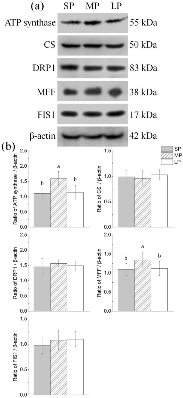Changes in protein levels of mitochondrial related factors in HG of hamsters in three different photoperiodic groups (a) Representative immunoblots of ATP synthase, CS, DRP1, MFF, FIS1, and β-actin in three different photoperiodic groups. (b) Ratio of ATP synthase, CS, DRP1, MFF, FIS1 to β-actin in HG of hamsters in three different photoperiodic groups. Values are means ±SD. n = 10. SP, short photoperiod; MP, moderate photoperiod; LP, long photoperiod. Different letters identify statistically significant difference ( P