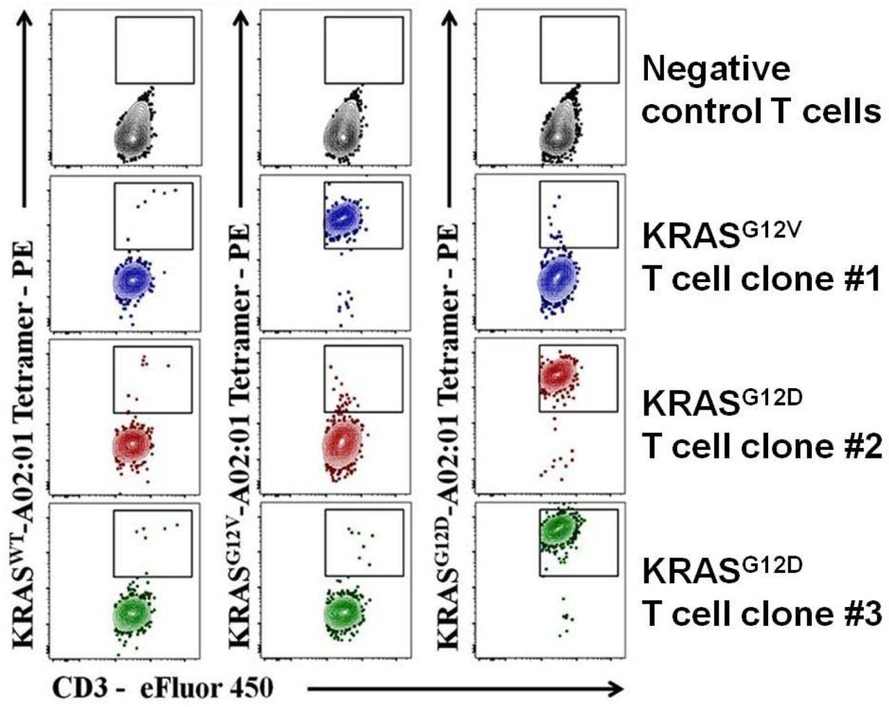 Tetramer analysis of HLA-A*02:01-restricted KRAS G12V/D specific T cell clones. Monoclonal CD8+ T cells (blue) were stained strongly by the KRAS G12V /A*02:01 tetramer (99.1%) and minimally (