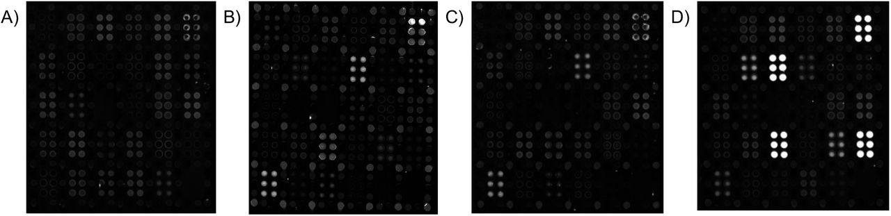 Representative AIR array images (100 ms exposures) of (A) 5% FBS; (B) 10% PNHS; (C) a negative single-donor sample, and (D) one convalescent serum sample. Strong responses to SARS-CoV-2 antigens are readily observed in (D), but not in (A), (B), or (C). In each case, samples were diluted 1:20 in Adarza diluent, and incubated with the arrays overnight at 4 °C. See Figure 1 for key to the array. All arrays in this figure were imaged at an exposure of 100 ms.