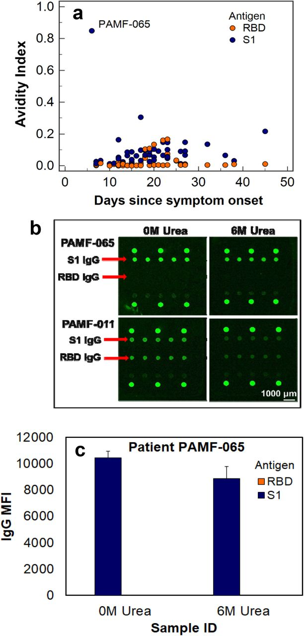 Antibody avidity against SARS-CoV-2 antigens. (a) Avidity of anti-S1 IgG and anti-RBD IgG measured in IgG-positive, PCR-confirmed COVID-19 patient sera collected 6-45 days post symptom onset. The serum of PAMF-065 showed unusually high avidity for anti-S1 IgG while being negative for anti-RBD IgG. (b) Upper panel: Fluorescence images of IgG-only channel showing PAMF-065 serum sample with high anti-S1 IgG level with and without urea treatment, hence high avidity. It showed negligible anti-RBD IgG. Lower panel: Fluorescence images showing another patient serum tested, PAMF-011, with much reduced anti-S1 IgG level after urea treatment, indicating low avidity. Low avidity was observed for all samples except PAMF-065. (c) Anti-S1 IgG median fluorescence intensity (MFI) signals of the PAMF-065 sample with and without urea treatment. The error bars indicate one standard deviation away from the mean.