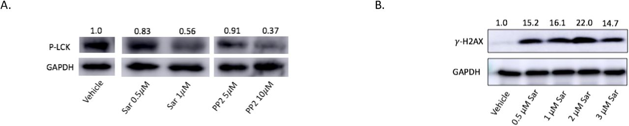 Cisplatin resistant endometrioid cells treated with LCK inhibitors indicate decreased pLCK and ovarian endometrioid cells treated with LCK inhibitor indicate increased DNA double strand breaks. Protein lysates from cisplatin resistant ovarian endometrioid cancer cells (CP70) treated with vehicle (DMSO), LCK inhibitor saracatinib (Sar), or PP2 were immunoblotted for pLCK, with GAPDH used as a loading control. Values normalized to vehicle control. (A) Protein lysates from ovarian endometrioid cancer cells (TOV112D) treated with varied doses of saracatinib (Sar) were immunoblotted for γ H2AX, with GAPDH used as a loading control (B) .