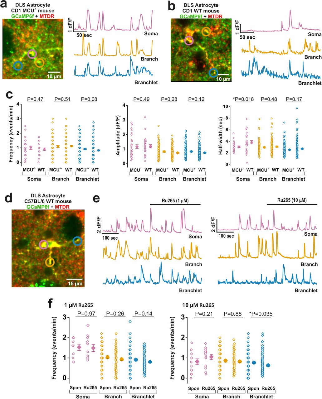 In situ characterization of calcium fluxes in astrocytic mitochondria from  the mouse striatum and hippocampus   bioRxiv