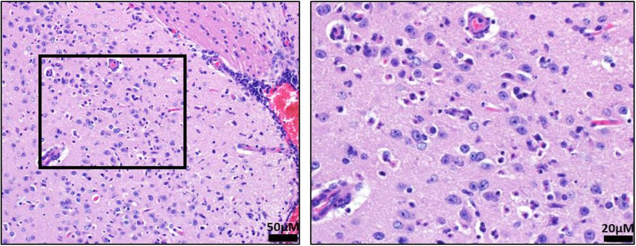 Brain lesions in SARS-CoV-2 infected mice. Representative H E staining of lungs in infected K18-hACE2 mice. Multifocal areas of gliosis within the amygdala, predominantly characterized by increased numbers of microglia, and there are individual shrunken, angular cells with hypereosinophilic cytoplasm, pyknotic nuclei and surrounded by a clear halo, consistent with necrosis. While the morphology and location of individual necrotic cells is suggestive of neuronal necrosis, additional diagnostics are necessary to confirm the cell of origin. The right panel is a enhanced magnification of the boxed area