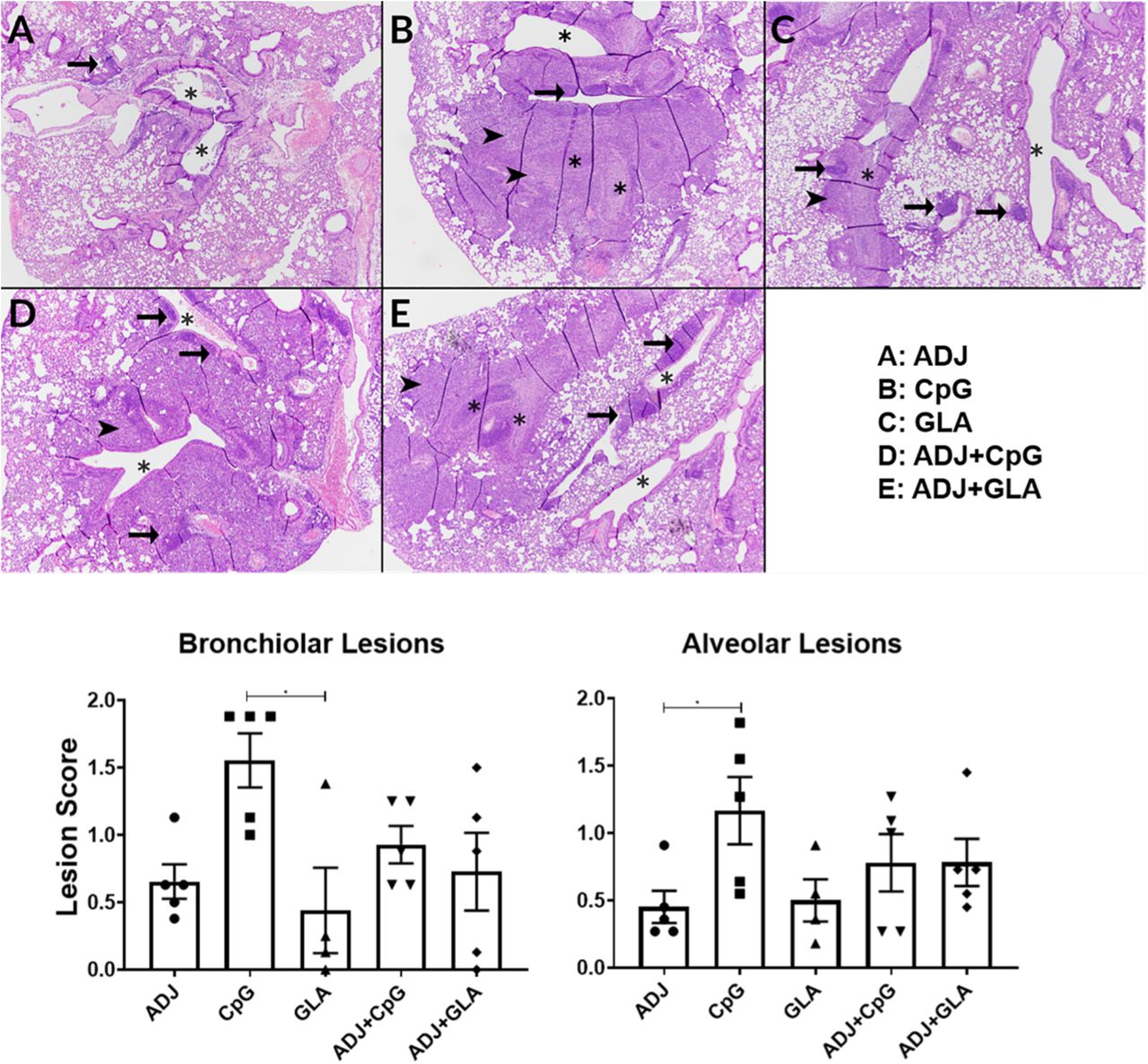Histopathological analysis of lungs following viral challenge of vaccinated mice. Groups of C57BL/6 mice were vaccinated twice (at 3 weeks interval) with NP protein formulated in various adjuvants. At 100 days after booster vaccination, vaccinated mice were challenged intranasally with H1N1/PR8 strain of influenza A virus. On the 6 th day after viral challenge, lungs were collected in neutral-buffered formailin, and tissue sections were stained with Hematoxylin and Eosin (H E). H E stained lung sections were evaluated by a board-certified pathologist (Dr. Gasper); he was blinded to the identity of sections. In each image (40X magnification), asterisks indicate similarly sized large bronchioles, arrow heads indicate regions in which bronchial lesions extend in to the adjacent alveoli, and arrows indicate perivascular lymphoid nodules. A. Adjuplex-vaccinated mouse: there is mild necrotizing bronchitis asterisks). B. CPG-vaccinated mouse: there is obliteration of two bronchioles by inflammation that extends far into the surrounding alveoli (arrowheads). C. GLA-vaccinated mouse: there is bronchiolitis affecting 1 of the larger bronchioles, with minimal extension into the adjacent alveoli. D. ADJ+CPG-vaccinated mouse. Broncholitis is similar to that in A, but alveolar regions around the affected bronchiole (center) are infiltrated by inflammatory cells. E. ADJ+GLA vaccinated mouse: bronchiolitis is of intermediate severity between B and C, and regionally extends into the adjacent alveolar tissue (arrowhead). Each lung section was scored individually, and lesion scores from 0-3 were assigned for bronchial lesions, alveolar lesions, and specific disease patterns, with 0 = absent, 1 = mild, 2 = moderate, 3 = severe. Bronchioloar Lesions: Epithelial degeneration/necrosis; Intraepithelial neutrophils; Intraepithelial eosinophils; Intraepithelial lymphocytes; Luminal dislodged epithelial cells/debris; Luminal cellular exudate; Peribronchiolar neutrophils; Pavementing/Subendoth