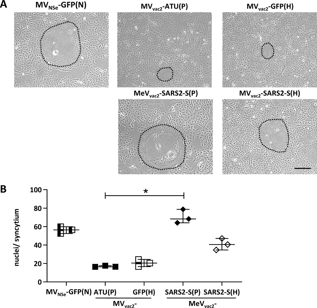 Characterization of fusogenic phenotype of MeV vac2 -SARS2-S(P) and MeV vac2 -SARS2-S(H). (A ) Photographs of fusion activity of Vero cells infected at an MOI of 0.01 with MeV vac2 -SARS2-S(P) or MeVvac2-SARS2-S(H) encoding SARS-CoV-2 S in additional transcription units post P or post H, respectively, in direct comparison to MV vac2 -ATU(P) or MV vac2 -GFP(H) control vaccine viruses or MV NSe -GFP(N) hyperfusogenic oncolytic MeV. Representative picture of one out of three independent experiments. Scale bar represents 200 mm. ( B ) Cell fusion was quantified 30 h after infection. For statistical analysis, one-way ANOVA was performed in combination with Tukey's Multi comparison test to compare all pair means. *, p