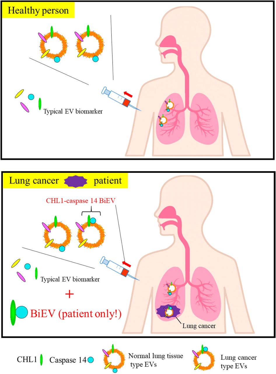 Summary of advantages for human EV screening using BiEV One of hypothetical mechanisms of BiEV differences between human healthy and lung cancer patients is summarized in this figure based on our results of no significant differences of CHL1 and caspase 14 expression levels. Due to the hypothetical mechanisms, it is considerable that our BiEV analysis is useful when it is difficult to characterize secreted cancer EVs by single molecular index ( e . g . serum CHL1 single screening and typical serum biomarker (CEA and SCC in Supplementary Table 3)). In this study, BiEV analysis may emphasize the differences using the information of bimolecular complex which is formed by association between CHL1 and caspase 14 with unknown cancer cell-specific mechanisms.