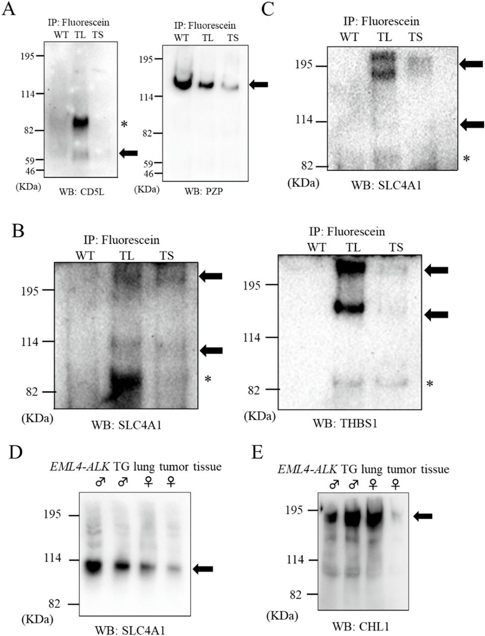 Measurement of CHL1-SLC4A1 BiEV in serum EVs. ( A ) Measurement of fluorescein-labeled SLC4A1 using a sandwich ELISA. The serum EVs from 12 wild-type mice (open bar) and 18 small lung tumor-bearing EML4-ALK transgenic mice (closed bar) were applied to EMARS reactions followed by ELISA measurements, respectively. The EMARS products containing fluorescein-labeled SLC4A1 were added to anti-SLC4A1 antibody-coated ELISA plates. A BiEV index (SLC4A1) was calculated based on the value of fluorescein-labeled SLC4A1 in standard samples. ( B ) Comparison of BiEV indexes between WT and TS. The BiEV indexes of TS were significantly higher than that of WT ( p = 8.9 × 10 −3 ) by a Mann–Whitney test. ( C ) ROC curve for BiEV indexes. AUC was calculated as 0.782. ( D ) A scatter-plot of tumor mass versus BiEV index. Correlation between BiEV index and lung tumor mass of TS was estimated using Spearman's rank correlation coefficient (0.389: p = 0.111). ( E ) Western blot analysis of SLC4A1 in whole-serum EVs from WT and TS. An aliquot of the serum from 12 animals in the wild-type group and 18 animals in small lung tumor-bearing EML4-ALK transgenic mice was mixed in equal proportions followed by EV purification. Arrows indicate the detected band of SLC4A1. Asterisks indicate unknown bands (predicted as non-specific or partial fragments).