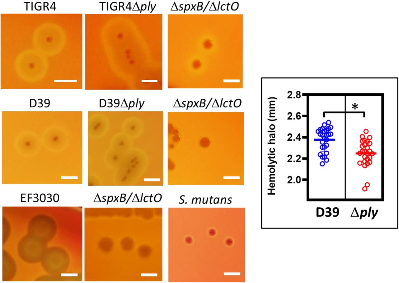 Hydrogen peroxide but not pneumolysin causes the α-hemolytic phenotype on blood agar plates. Spn wt strains TIGR4, D39, EF3030, or Δ ply , Δ spxB /Δ lctO mutant derivatives, or S. mutans strain ATCC 25175, was inoculated onto blood agar plates and incubated for 24 h at 37°C in a 5% CO 2 atmosphere. Plates were photographed with a Canon Rebel EOS T5 camera system and digital pictures analyzed. Phenotypes were confirmed at least three times. Bars=2 mm. Inset: Hemolytic halo measured with ImageJ software on at least 25 colonies from images obtained from cultures on blood agar plates of D39 wt or D39 Δ ply ; unpaired Student t test was performed to assess significance; NS=no significant, p > 0.05.