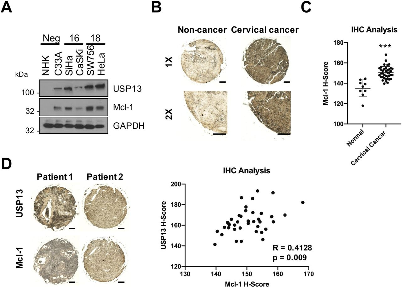 USP13 and Mcl-1 expression correlate in cervical cancer. A) Representative western blot of Mcl-1 expression in normal human keratinocytes (NHKs), HPV-C33A cells, HPV16+ <t>SiHa</t> and CaSKi cells and <t>HPV18+</t> SW756 and HeLa cells. GAPDH served as a loading control. Quantification of the protein band intensities are shown on the right. B) Representative immunohistochemical (IHC) staining of Mcl-1 expression in cervical cancer tissues and normal cervical epithelium from a tissue microarray (TMA). Scale bars, 10025FBμm. C) Scatter dot plot analysis of Mcl-1 expression from a larger cohort of cervical cancer cases (n=41) and normal cervical epithelium (n=9) is shown on the right. D) Representative immunohistochemical (IHC) staining of USP13 and Mcl-1 expression in cervical cancer tissue from two patients. Staining was performed from separate cores from the same patient samples. Scale bars, 10025FBμm. Correlation was determined using Spearman's analysis and is shown on the right. * p