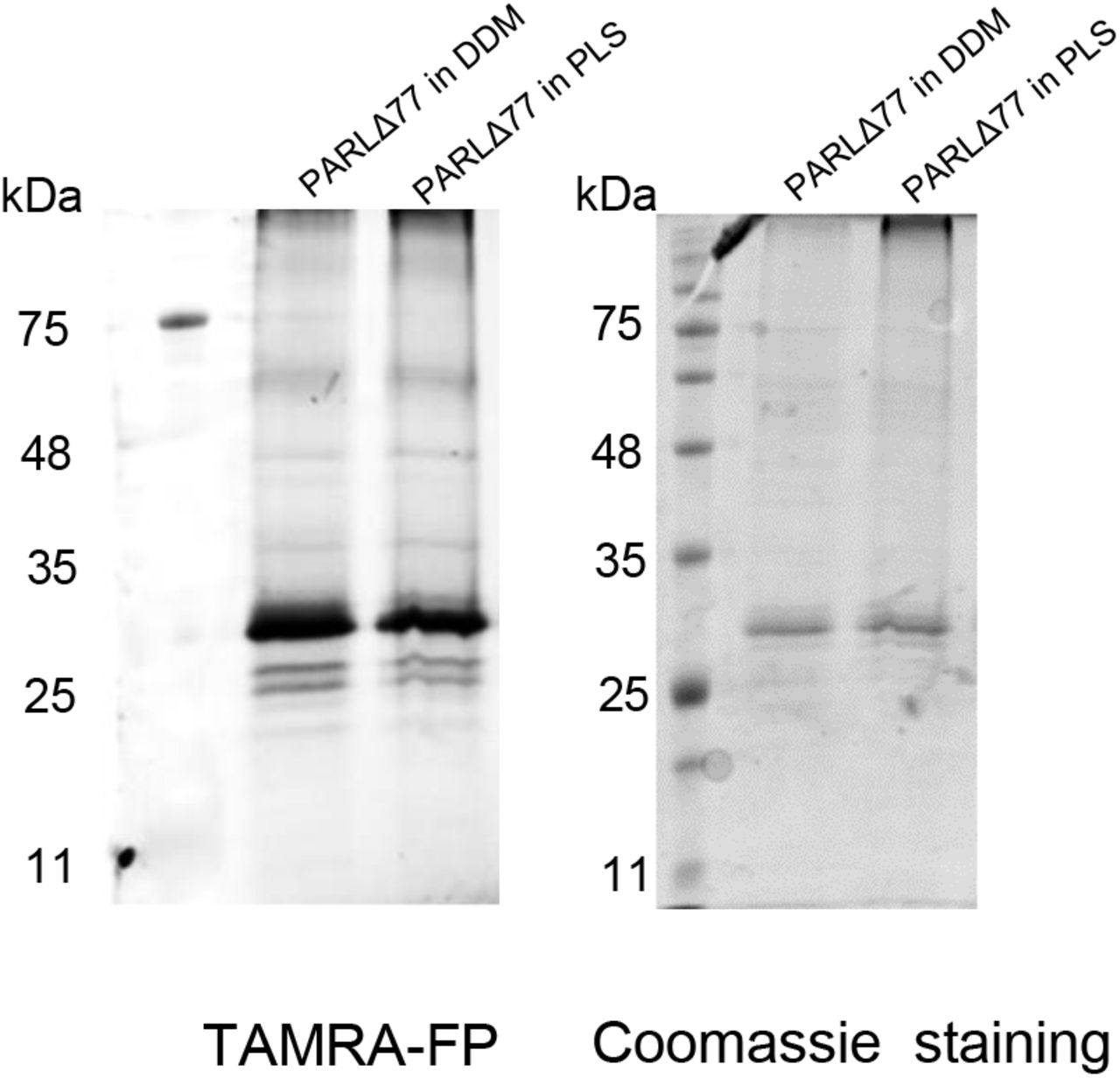 SDS-PAGE of PARL with TAMRA probe. To determine orientation of PARL in the proteoliposomes, PARL in PLs was incubated with TAMRA and then separated on a 14% SDS-PAGE gel. The fluorescent TAMRA probe was visualized using an imager (left) and also stained with <t>Coomassie</t> blue (right).