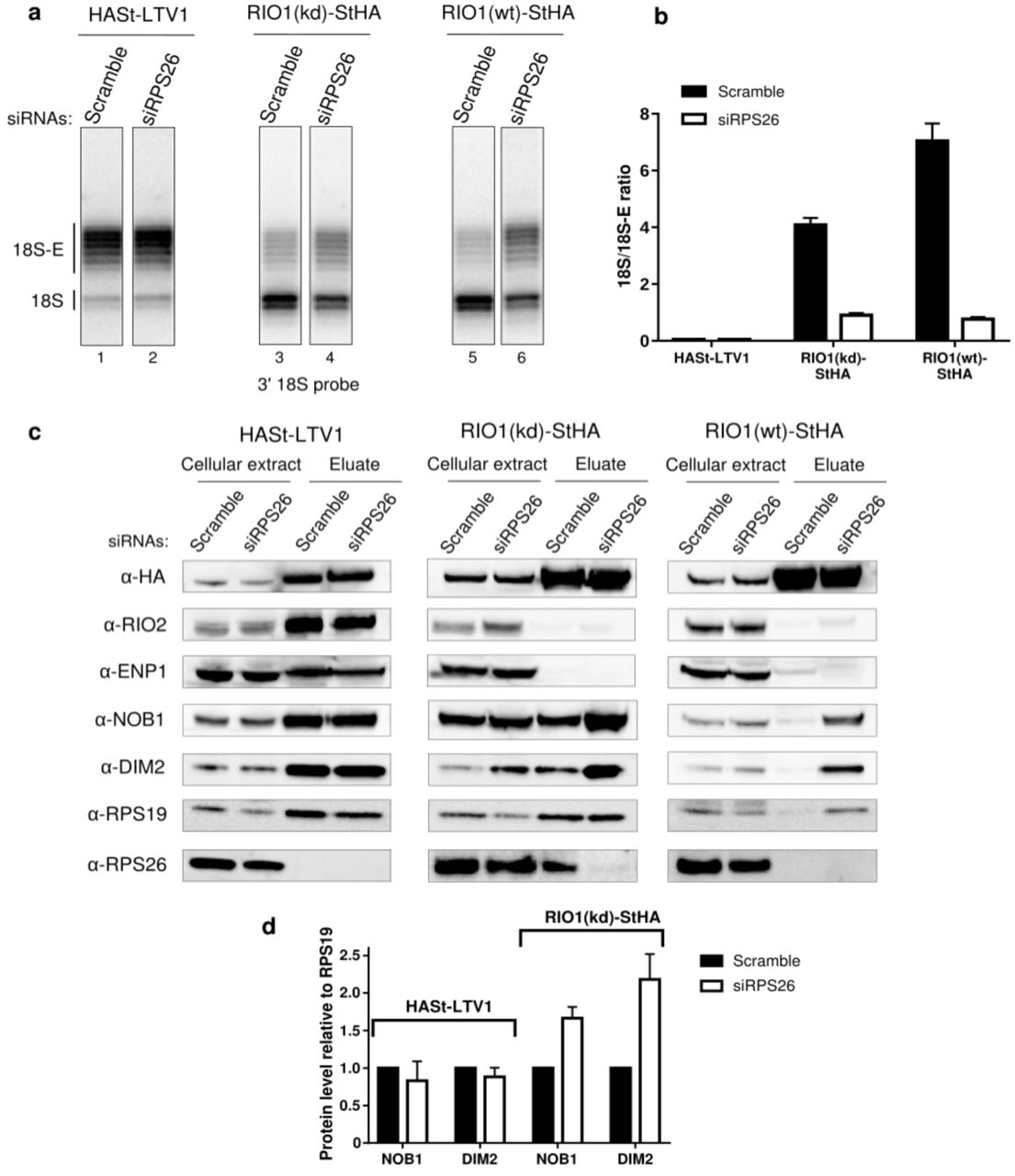 RPS26 is required for rRNA cleavage at site 3 as well as NOB1 and DIM2 release. HEK cell lines expressing tagged version of LTV1, the catalytically inactive RIO1-D324A (RIO1 (kd)) or wild-type RIO1 (RIO1(wt)) were treated with scramble or RPS26 siRNAs for 48 h. a , RNase H assays were conducted as in Figure 4 on rRNAs of pre-40S particles purified with the mentioned StHA tagged bait, either from RPS26-depleted cells or from control cells (scramble siRNA). b , Signals corresponding to the 18S-E and 18S rRNA detected in (a) were quantified and represented as the 18S/18S-E ratio for the different pre-40S particles. Error bars, s.d. (n=3) c , Cell extracts and purified particles were analysed by Western Blot using the indicated antibodies. d , Bands corresponding to DIM2 and NOB1 (in the eluates) were quantified, corrected for pre-40S particle loading (using RPS19) and normalized to the control condition (set to 1). Error bars, s.d. (n=3).