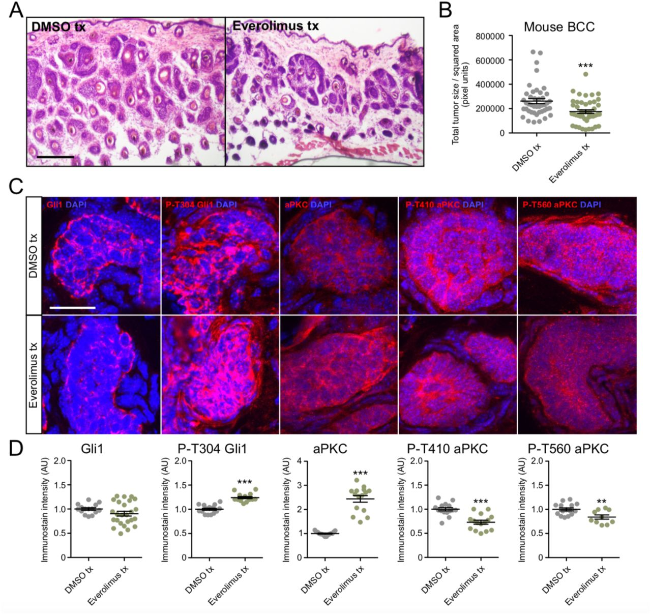 mTor inhibition suppresses murine BCC growth and aPKC activity. A) Hematoxylin and eosin staining of dorsal back skin collected from DMSO- or Everolimus-treated Ptch1 fl/fl ; Gli1 - Cre ERT2 mice. Scale bar, 50 μm. B) Quantification of total tumor size per square area (n > 250 tumors from 5 mice). tx, treatment. C) Immunofluorescent staining of DMSO- or Everolimus-treated Ptch1 fl/fl ; Gli1 - Cre ERT2 mice for the indicated markers. Scale bar, 25 μm. D) Quantification of immunostains (n = 5 tumors from 3 mice). AU, arbitrary units. Error bars represent SEM. Significance was determined by unpaired two-tailed t test. *, p