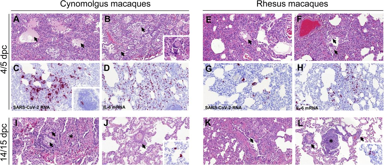 Histopathological changes in cynomolgus and rhesus macaques during SARS-CoV-2 infection. Diffuse areas of DAD observed in cynomolgus macaques at 4/5 dpc with shrunken, eosinophilic cells within the alveolar walls (A, B), together with alveolar oedema (A, arrows) pneumocyte hyperplasia and expanded alveolar spaces with inflammatory cell infiltration (B, arrows). Occasional multinucleated cells resembling syncytial cells are observed (B, insert). ISH detection of viral RNA (RNAScope, red chromogen) within the areas of pneumonia (C) and occasionally in the BALT (C, insert). Abundant IL-6 producing cells observed in the areas of pneumonia (D) Similar histopathological changes observed in rhesus macaques, including DAD areas with patchy alveolar oedema (E, arrow), alveolar macrophage hyperplasia (F, arrow), bronchial exudates and presence of viral RNA within the areas showing pneumonia (G) and abundant IL-6 producing cells (H). Histopathological changes with less severity observed at 14/15 dpc in cynomolgus macaques, with infiltration of mononuclear cells within alveolar spaces and bronchiolar luminae (I, arrows) and parenchymal collapse (I, *) and perivascular cuffing (J, arrow), with minimal detection of viral RNA in pneumocytes (J, insert). Bronchiole regeneration (K, arrow) and perivascular/peribronchiolar cuffing observed in rhesus macaques at 14/15 dpc (L, arrows), together with BALT proliferation (L, *) with minimal presence of viral RNA (L, insert).