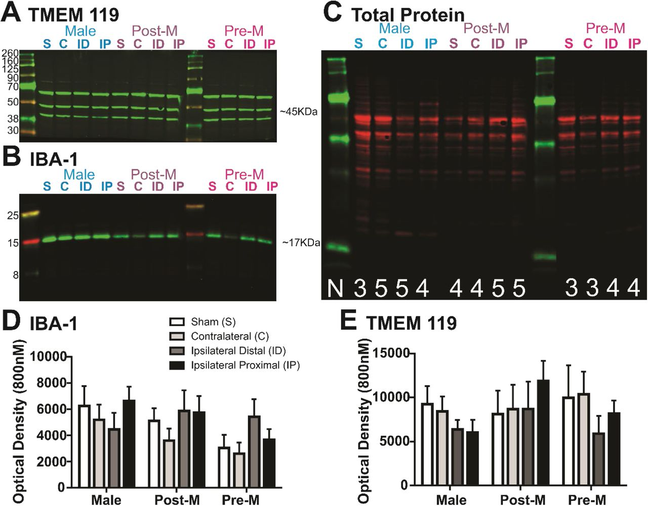 TMEM119 protein expression is unchanged in proximity to the infarcted tissue. Example blots of TMEM119 (A) , IBA1 (B) , and total protein (C) for regions and sex groups. D) Summary of IBA1 (D) and TMEM119 (E) data illustrate that these proteins remain relatively unchanged among brain regions and sex groups after ischemic stroke. Sample sizes range from 3-5 among sex groups and regions and are shown in (A) .