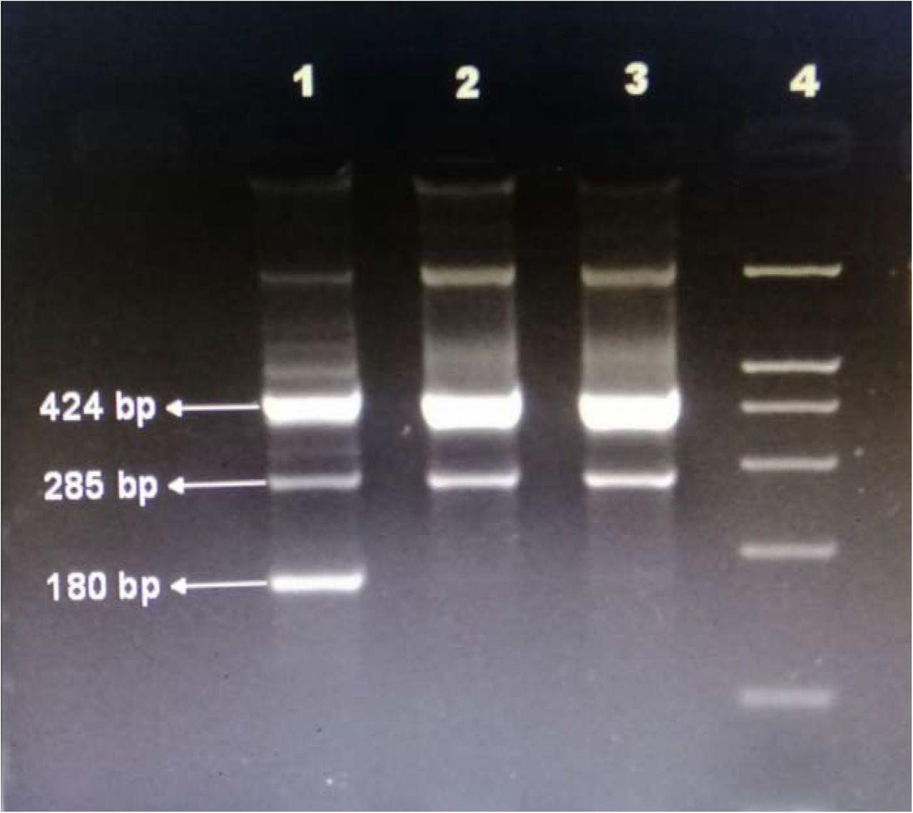 T-ARMS- PCR based genotyping of the ITGB3 gene (Lane 1 heterozygous; lane 2,3 normal and lane 4 DNA ladder)