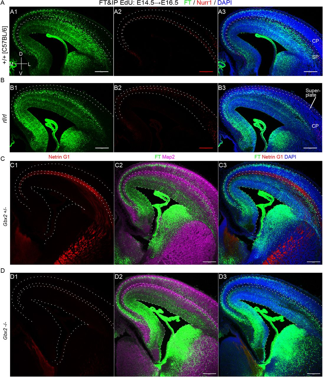 Regional differences in neuronal migration in reeler mutants and Gbx2 -/- mice. A-B: In wildtype brains, Nurr1+ cells were observed in the SP (A), while in reeler mice, Nurr1+ cells were mostly observed in the superplate, or beneath the meninges (B). In contrast to wildtype mice clearly showing regional differences in neuronal migration (A), regional differences were not clear in reeler mice (B). FT was performed at E14.5 and fixed at E16.5. C-D: In Gbx2 +/- brain, Netrin G1-positive thalamocortical axons run the SP (C1). In Gbx2 -/- brain, Netrin G1-positive thalamocortical axons were almost absent in the cortex (C2). In both cases, many neurons were observed just beneath the SP. FT was performed at E14.5 and fixed 50 hour later. Coronal sections slightly caudal to the main part of the interventricular foramina were shown to evaluate the thalamus at the same sections. DAPI, 4',6-diamidino-2-phenylindole; FT, FlashTag; VZ, ventricular zone; MAZ, multipolar cell accumulation zone; IZ, intermediate zone; SP, subplate; CP, cortical plate; M, medial; L, lateral; D, dorsal; V, ventral. Scale bars, 200 μm.