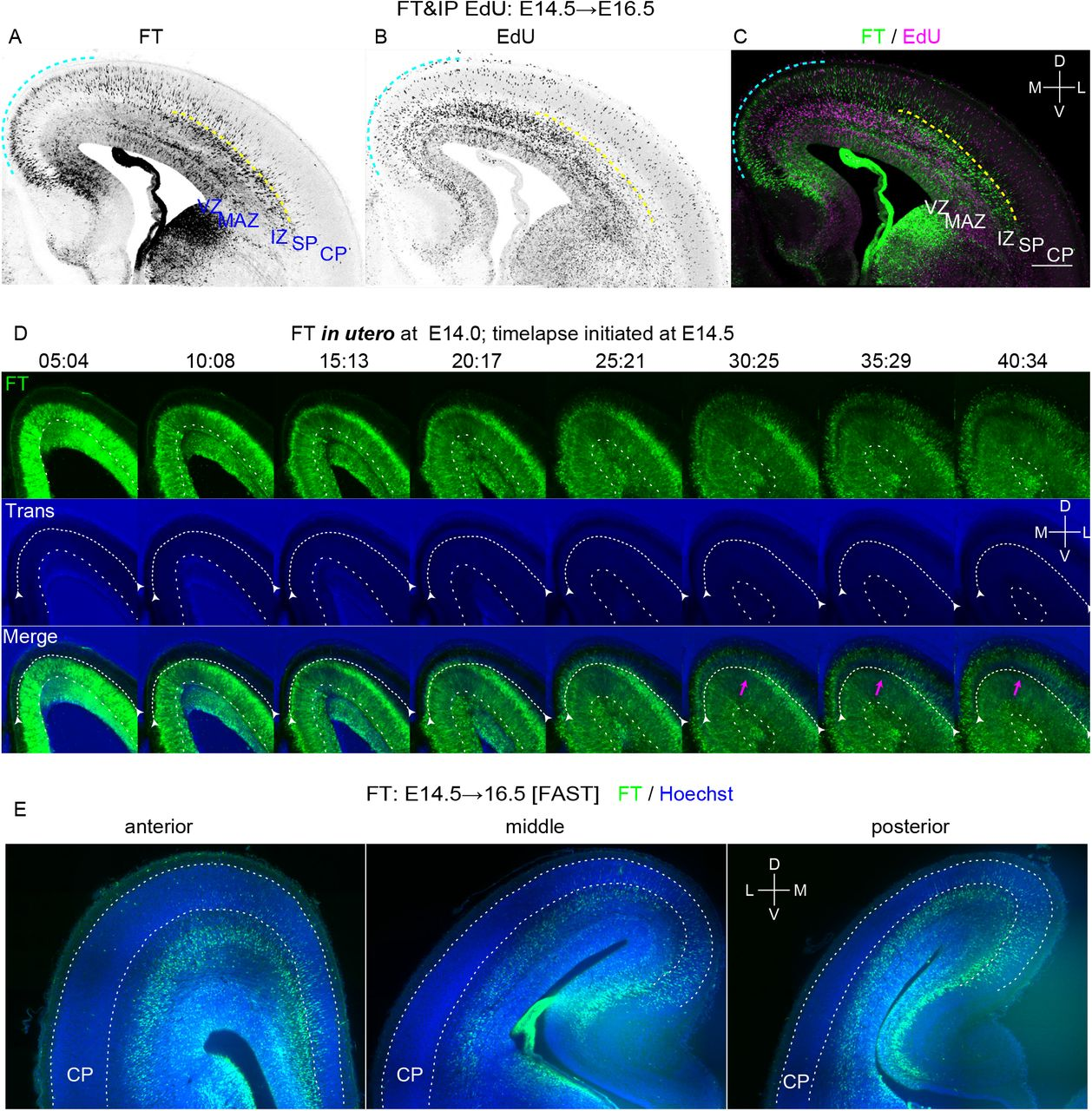 Regional differences in neuronal migration in the cerebral cortex revealed by FT. A-C: To visualize migration profile of the whole telencephalon, CFSE was injected into the ventricle of the E14.5 embryos and 5-Ethynyl-2'-deoxyuridine (EdU) was injected into the peritoneal cavity of the mother at the end of the surgery. Harvested at E16.5, many cells labeled with FT reached the superficial part of the CP in the dorsomedial cortex (cyan dotted line), while almost no cells reached the CP in the dorsolateral cortex (A, C). In the dorsolateral cortex, many neurons were just below the subplate (SP) (yellow dotted line). Such a clear difference in neuronal migration was not detected by EdU (B, C). D: FT labeling was performed at E14.0 and slice culture was prepared at E14.5. Labeled cells left the VZ and migrate in the MAZ in multipolar morphology (10:08-25:21). They gradually obtained polarity and migrate in the intermediate zone (20:17-30:25) and reached just below the SP (relatively dark band in the transmitted light channel, highlighted by white arrows). Neurons in the dorsomedial cortex (more medial than the magenta arrow) migrate smoothly to reach the most superficial part of the cortical plate(25:21-30:25), while in the dorsolateral cortex (more lateral than the magenta arrow), neurons seemed to sojourn transiently below the SP (clear in the regions lateral than the magenta arrow)(30:25-35:29). These cells subsequently migrated into the CP in the locomotion mode (35:29-40:34). E: FAST 3D imaging of E16.5 brains in which FT labeling was performed at E14.5. Anterior and posterior representative sections were shown in addition to a section at the interventricular foramen. Supplemental Movie 1 shows a whole 3D movie taken from this brain. EdU, 5-Ethynyl-2'-deoxyuridine; DAPI, 4',6-diamidino-2-phenylindole; FT, FlashTag; IP, intraperitoneal injection; VZ, ventricular zone; MAZ, multipolar cell accumulation zone; IZ, intermediate zone; SP, subplate; CP, cortical plate; M,