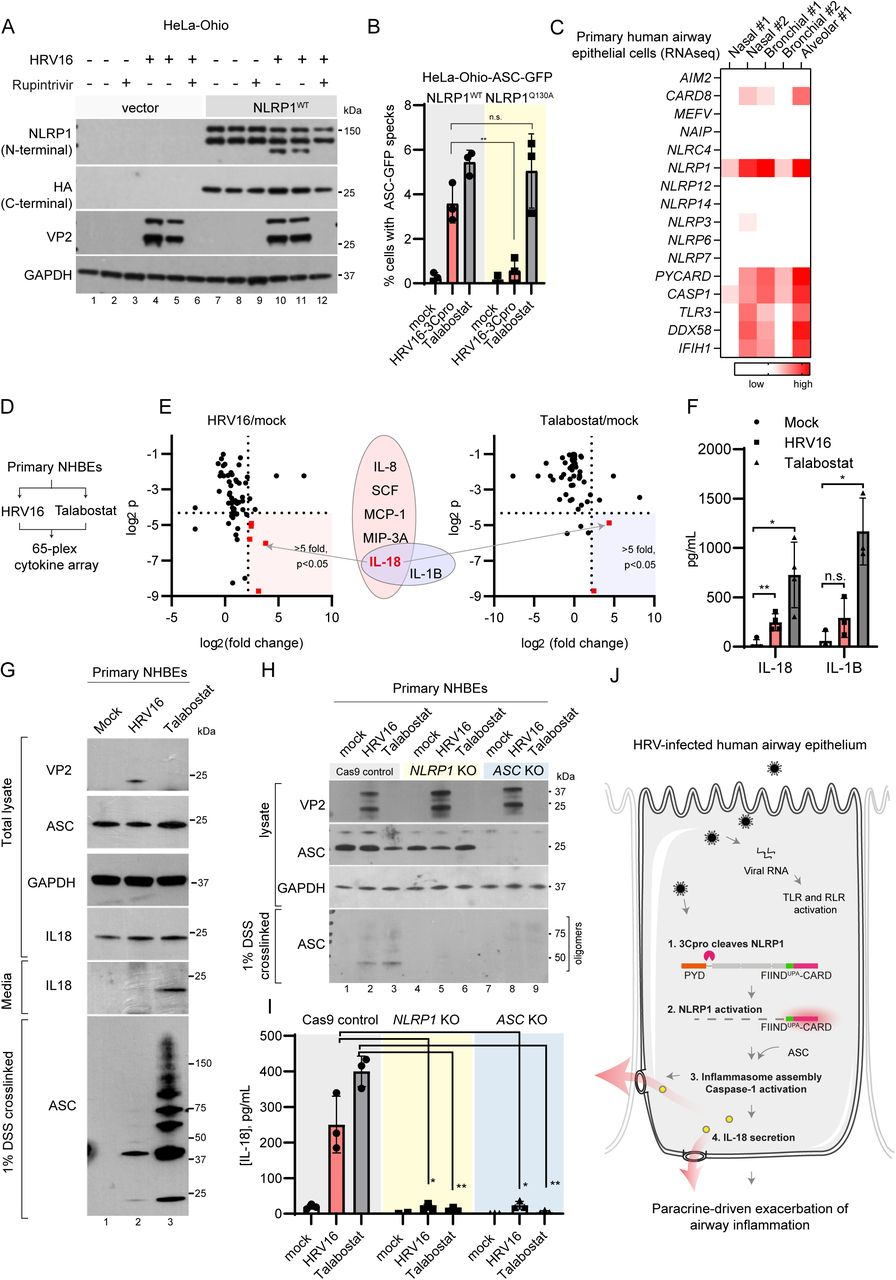 <t>NLRP1</t> is required for HRV-induced inflammasome assembly and IL-18 secretion in primary human bronchial epithelial cells. A. HRV16 infection causes NLRP1 cleavage. HeLa-Ohio cells stably expressing NLRP1-HA and a vector control were infected with HRV16 at MOI=1 in duplicates. Rupintrivir (10 nM) was added at the time of infection and cell pellets were harvested 24 hours after inoculation. B. The effect of HRV16 infection on <t>ASC-GFP</t> speck formation in HeLa-Ohio-ASC-GFP cells expressing wild-type NLRP1 or NLRP1 Q130A . ***, p