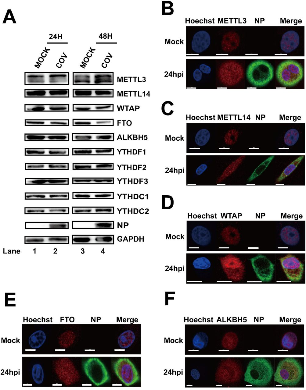 SARS-CoV-2 infection influenced the expression patterns of m 6 A-related proteins. Vero-E6 cells infected with SARS-CoV-2 (MOI = 0.01) were harvested at 24 and 48 hpi. Western blotting was performed with antibodies as indicated. GAPDH was used as a loading control. (B–F) Confocal microscopy images of SARS-CoV-2-or mock-infected Vero-E6 cells. The nucleus (blue) and virus protein NP (green) were labeled with Hoechst and anti-NP1-specific antibodies, respectively. The methyltransferases and demethylases were stained with antibodies as indicated. Scale bars, 5 μm.