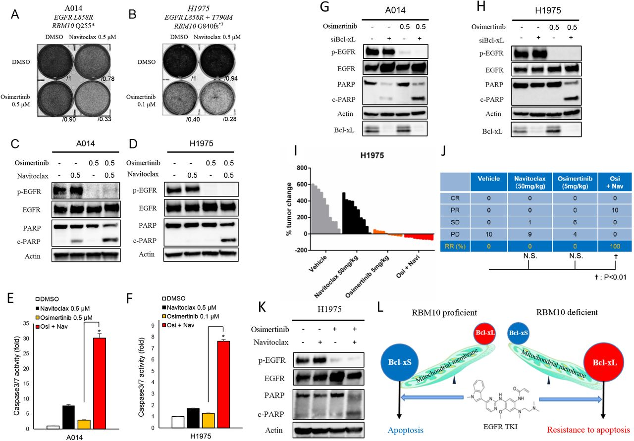 Resistance caused by RBM10 deficiency in EGFR mutant lung cancer can be overcome with Bcl-xL and EGFR inhibitor combination therapy. A-F, RBM10-defιcient A014 ( EGFR L858R; RBM10 Q255 *) and H1975 ( EGFR L8585R/T790M; RBM10 G840fs*7 ) cells were treated with navitoclax (ABT-263) 500nM alone or in combination with indicated osimertinib concentrations. Crystal violet viability assays ( A, B ) and apoptosis was measured with PARP cleavage and Caspase 3/7 activity ( C-F ). Each bar represents the mean ± SEM of the fold change after normalization to DMSO control ( E, F ). G-H , Western blot analysis of Bcl-xL knockdown with siRNA in combination with osimertinib 500nM in A014 and H1975 cells. I-J, Mice bearing H1975 subcutaneous xenografts were treated with vehicle, navitoclax (50mg/kg), osimertinib (5mg/kg), or combination (navitoclax and osimertinib) therapy for 14 days (n=10 tumors each arm). Percent changes in tumor volume compared to baseline for individual xenografts are shown. Objective tumor response for indicated treatment groups in ( J ). K, H1975 xenograft tumor explants were treated with vehicle, navitoclax, osimertinib, or combination (navitoclax and osimertinib, 50mg/kg and 5mg/kg respectively) therapy for 14 days. Tumors were harvested 4 hours after treatment and the indicated protein levels were determined by Western blot analysis. L, Proposed model of RBM10 regulating EGFR TKI-induced apoptosis through differential Bcl-x splicing. Data represent 3 independent experiments in data panels. *; p