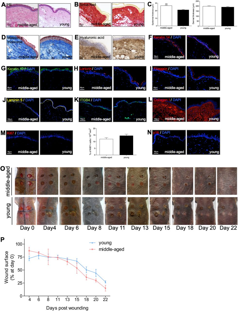 NMR skin histomorphology and wound healing. ( A, B, D ) HE, Sirius Red and Masson's Trichrome staining photomicrographs on sections of middle-aged (A) and young (Y) NMR back skin. ( C ) Histograms showing the epidermal and dermal thickness (μm) of middle-aged and young NMR back skin. ***p≤0.0001 in Mann-Whitney U test. n=4 animals per group. ( E-N ) Hyaluronic acid, Keratin 14, Keratin 10, Loricrin, Filaggrin, Laminin 5, ITGB4, Collagen I, Ki67, and p16 photomicrographs on sections of middle-aged and young NMR back skin. Cells were stained with either Alexa 546 or Alexa 488 fluorochromes. For hyaluronic acid, cells were stained with <t>3,3'-diaminobenzidine.</t> Negative controls were performed in parallel with the samples substituting the primary antibody with the equivalent isotype. Histogram showed the number of Ki67+ cells per surface in both age group. Scale bar = 50 or 100 μm. *represents differences between A and Y animals. Bars: SEM. ***p≤0.0001 in Mann-Whitney U test. n=4 animals per group. ( O ) Photomicrographs of back skin wounds for middle-aged and young animals from day 0 to day 22 post wounding. ( P ) Wound closure rate (% of wound surface at day 0) from day 4 to day 22 post wounding. No statistical difference was found the 2 groups using Mann-Whitney U test. n=4 animals per group.