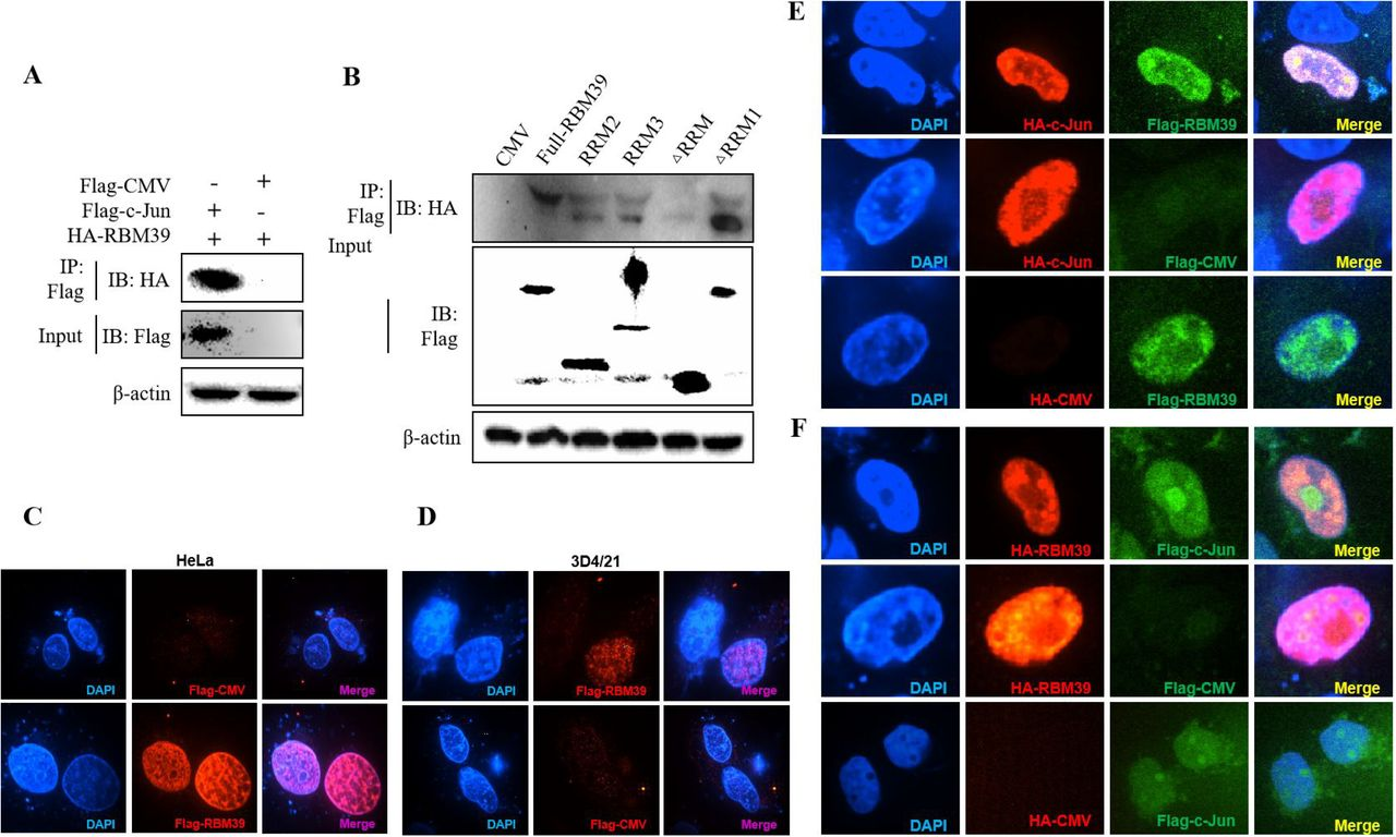 Interaction and co-localization between RBM39 and c-Jun. (A) HEK 293T cells were co-transfected with Flag-c-Jun (or empty vector) and HA-RBM39. (B) The plasmids Flag-RBM39 (full-length), RRM2, RRM3, ΔRRM1, ΔRRM or empty vector and pHA-c-Jun was co-transfected into HEK293T respectively. At 24 h after transfection, the cells lysates of (A) and (B) were precipitated with anti-Flag-labeled beads (Sigma) and were further detected by WB with anti-Flag/HA antibody. (C-F) HEK293T cell were co-transfected with pFlag-RBM39+pHA-c-Jun or pFlag-c-Jun+pHA-RBM39. After 24 h, cells were fixed and doubly stained with rabbit anti-HA mAb and mouse anti-Flag antibody followed by FITC-conjugated anti-rabbit IgG (green) or IF555-conjugated anti-mouse IgG (red). Nuclei were stained with Hoechst 33258 dye (blue). Interaction and nuclear localization of RBM39 and c-Jun were observed using Laser confocal fluorescence microscope. Scale bar: 14μm. Data are representative of results from three independent experiments.