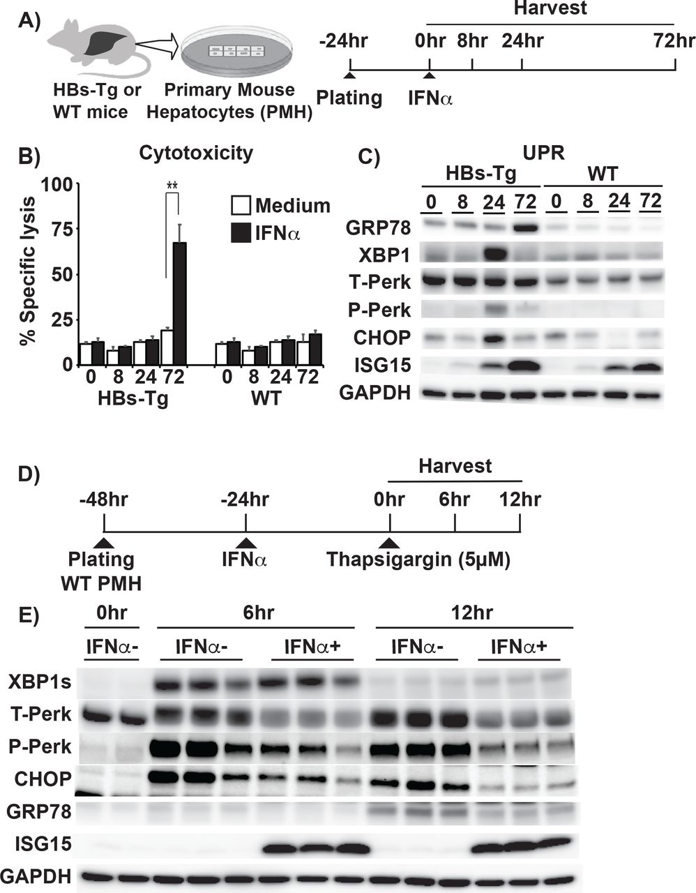 IFNα exerts direct cytotoxicity to HBsAg accumulating hepatocytes and downregulate UPR. (a-c) Effects of IFN signaling and UPR modulation on HBsAg accumulating hepatocytes in vitro. (A) Experimental design. (B) LDH levels in the supernatant of PMH culture were measured at indicated time points after adding medium (white bars) or IFNα (0.1MU/ml) (black bars). (C) The immunoblots of UPR related molecules and ISG15 at specified time points after IFNα treatment. (D, E) IFNα suppresses chemically induced UPR in vitro. (D) Experimental schema. (E) Representative immunoblots show the effect of IFNα on UPR related-protein levels at 0, 6, and 12 hours after treatment with <t>thapsigargin.</t>