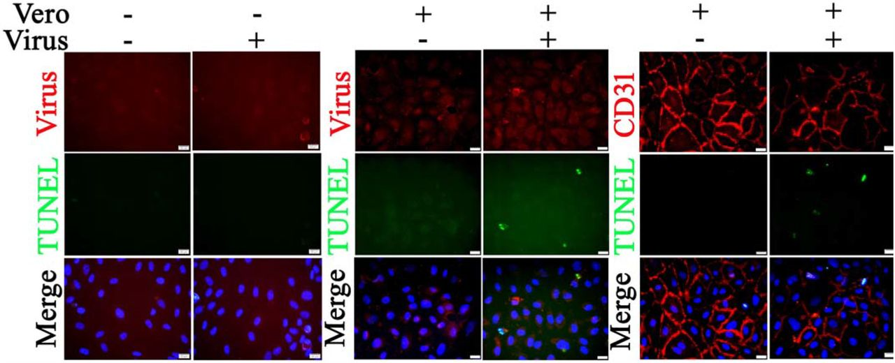 Co-culture of Vero cells and relatively nonpermissive HUVECs results in apoptosis following SARS-CoV-2 infection. HUVECs (in the culture wells) were co-cultured with or without Vero cells (in the culture insert). The co-cultures were exposed to 0.1 MOI of SARS-CoV-2 for 72 hours. Fixed HUVECs in the well were subjected to IF staining to detect SARS-CoV-2 (red) or CD31 (red; an EC-specific marker) and TUNEL (green). Fixed Vero cells in the insert were subjected to IF staining to detect SARS-CoV-2 and TUNEL ( Fig. S2 ). Nuclei of HUVECs were counterstained with DAPI (blue) Scalebars, 20 µm.