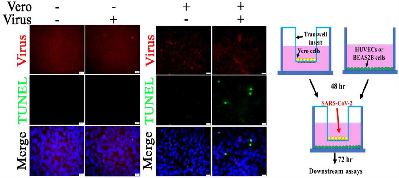 Co-culture of Vero cells and relatively nonpermissive BEAS2B cells results in apoptosis following SARS-CoV-2 infection. BEAS2B (in the wells) were co-cultured with or without Vero cells (in the insert). The co-cultures were exposed to 0.1 MOI of SARS-CoV-2 for 72 hours. Fixed BEAS2B cells in the well were subjected to IF staining to detect SARS-CoV-2 (red) and TUNEL (green). Fixed Vero cells in the insert were subjected to IF staining to detect SARS-CoV-2 and TUNEL ( Fig. S2 ). Nuclei of BEAS2B cells were counterstained with DAPI (blue) Scalebars, 20 µm.