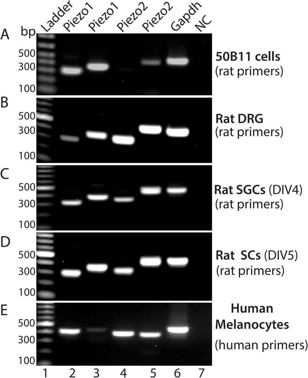 Validation of Piezos (2 and 1) expression by RT-PCR RT-PCR shows amplification of Piezo1 and Piezo2 transcripts in rat 50B11 cells ( A ), rat DRG ( B ), rat primary cultured SGCs at day of in vitro 4 (DIV, C ), and rat primary cultured Schwann cells at DIV5 ( D ) by two different primer pairs specific for amplification of rat Piezo1 and Piezo2 transcripts, as well as detection of Piezo1 and Piezo2 transcripts by two different primer pairs specific for human Piezo1 and 2 in human primary cultured melanocytes ( E ). Lane 1: ladder, lane 2-3: Piezo1 amplified by two piezo1 primer pairs ( A-D , rat; E , human), lane 3-4: Piezo2 amplified by two piezo2 primer pairs ( A-D , rat; E , human), lane 7: Gapdh, and lane 8: negative control.