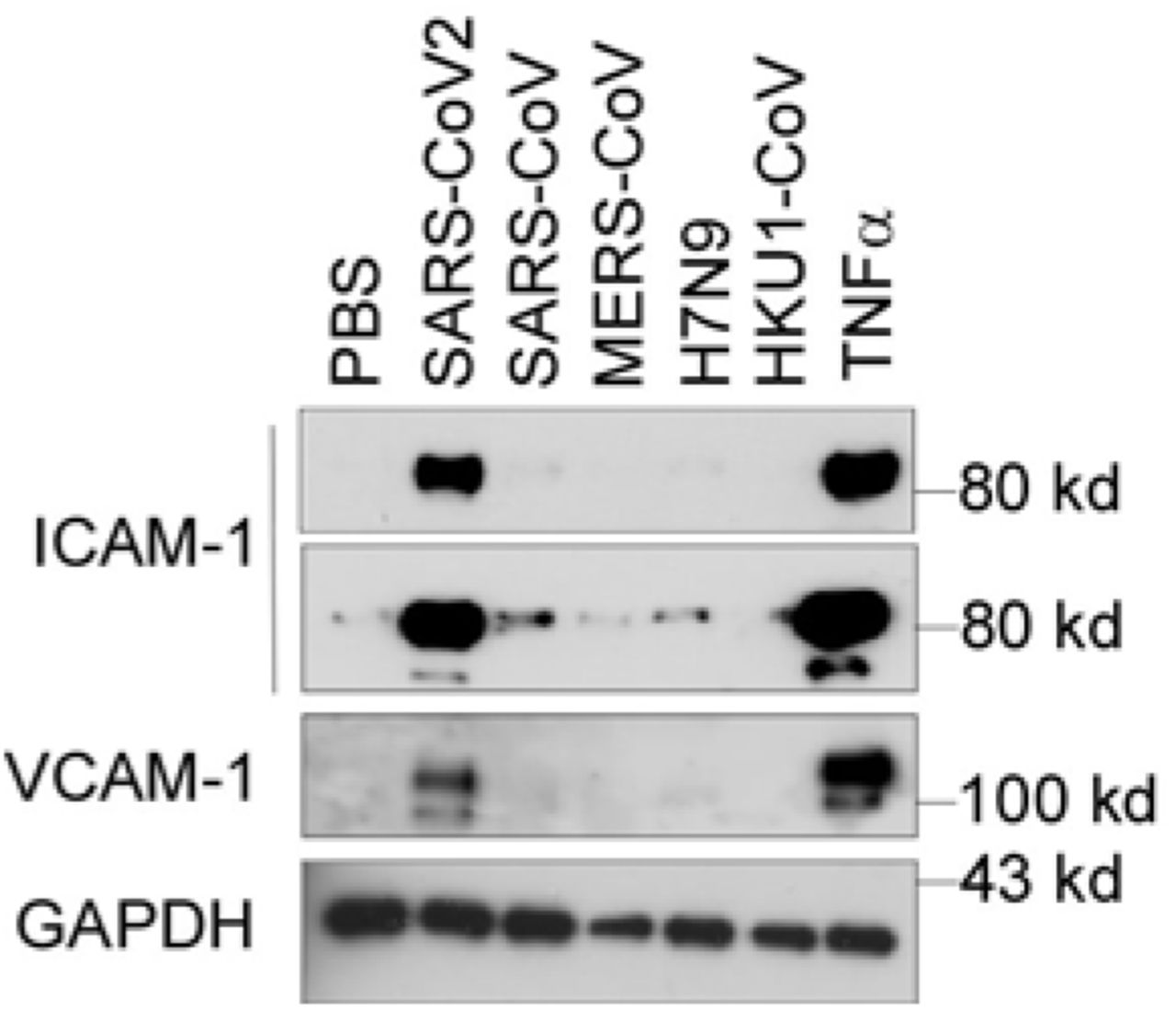 The N protein from SARS-CoV2 but not the other coronaviruses potently induced endothelial cell activation. HLMECs were treated with or without five different recombinant viral N proteins (1 μg/mL) including SARS-CoV2, SARS-CoV, MERS-CoV, H7N9 and HKU1-CoV for 8 hrs. The expression of ICAM-1 and VCAM-1 was detected by western blot. TNFα (10 ng/mL) was served as a positive control. GAPDH was served as loading control. The experiments were repeated at least one more time.