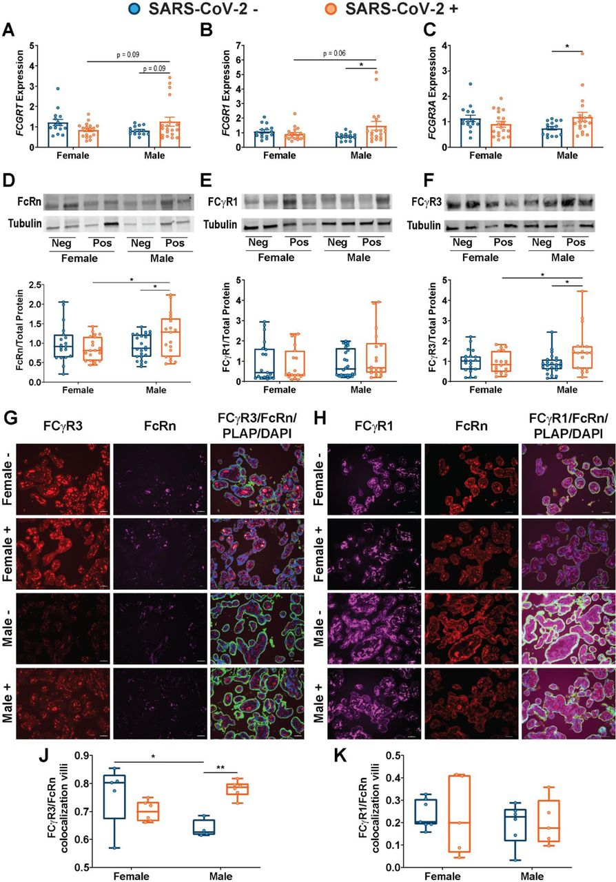 Sexually dimorphic regulation of Fc receptor gene expression, protein expression, and colocalization. (A-C) RTqPCR analyses of male or female placental expression of FCGRT (A) , FCGR1 (B), and FCGR3A (C) in placental biopsies from SARS-CoV-2 negative (blue) or SARS-CoV-2 positive (orange) pregnancies. Expression levels shown are relative to reference gene YWHAZ . (D-F) Representative immunoblots and quantification of fetal female or fetal male expression of FcRn (A), FCγR1 (B), and FCγR3 (C) in placental biopsies from SARS-CoV-2 negative (blue) or SARS-CoV-2 positive (orange) pregnancies. Neg and Pos on western blot designates SARS-CoV-2 negative and positive pregnancies. (G) Placental tissue sections from SARS-CoV-2 + and SARS-CoV-2 – mothers were stained for FCγR3 (red), FcRn (purple), and placental alkaline phosphatase (PLAP, green), a trophoblast marker, and DAPI (blue). (H) Box-and-whisker plots showing FCγR3/FcRn co-localization in placental villi. (I) Placental tissue sections from SARS-CoV-2 + and SARS-CoV-2 – mothers were stained for FCγR1 (purple), FcRn (red), and placental alkaline phosphatase (PLAP, green), a trophoblast marker, and DAPI (blue). (J) Box-and-whisker plots showing (J) FCγR1/FcRn or (K) FCγR2/FcRn co-localization in placental villi. Two-way ANOVA followed by Bonferroni's post-hoc analyses were performed to determine significance. * p