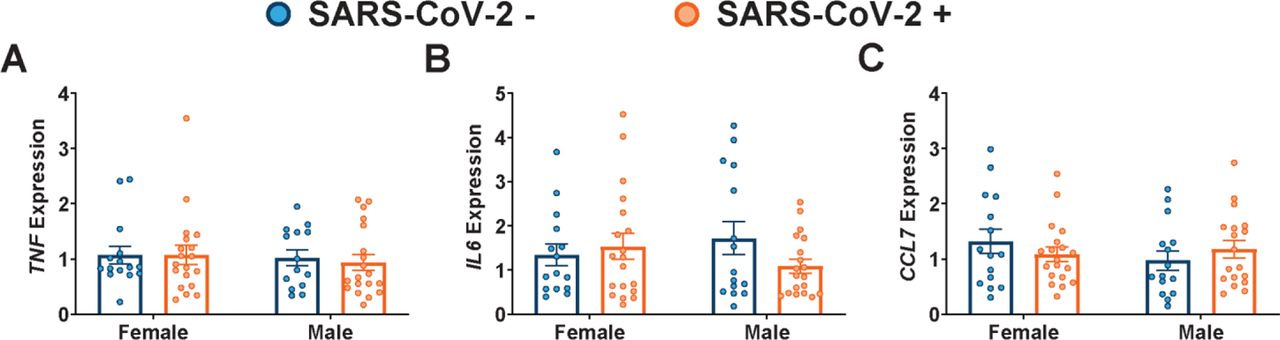 No effect of maternal SARS-CoV-2 infection on expression or localization of FCγR2. (A-C) qPCR analyses of fetal male or fetal female expression of ( A ) FCGR3B, ( B ) FCGR2A, and ( C ) FCGR2B in placental biopsies from SARS-CoV-2 negative (blue) or SARS-CoV-2 positive (orange) pregnancies. Expression levels shown are relative to reference gene YWHAZ . (D) Representative immunoblots and quantification of FCγR2 in female or male placental biopsies from mothers testing negative (blue) or positive (orange) for SARS-CoV-2. (E) Placental tissue sections from SARS-CoV-2 + and SARS-CoV-2 – mothers were stained for FCγR2 (purple), FcRn (red), and placental alkaline phosphatase (PLAP, green), a trophoblast marker, and DAPI (blue). (F) Box-and-whisker plots showing FCγR2/FcRn co-localization in placental villi. Two-way ANOVA followed by post-hoc analyses were performed to determine significance. * p