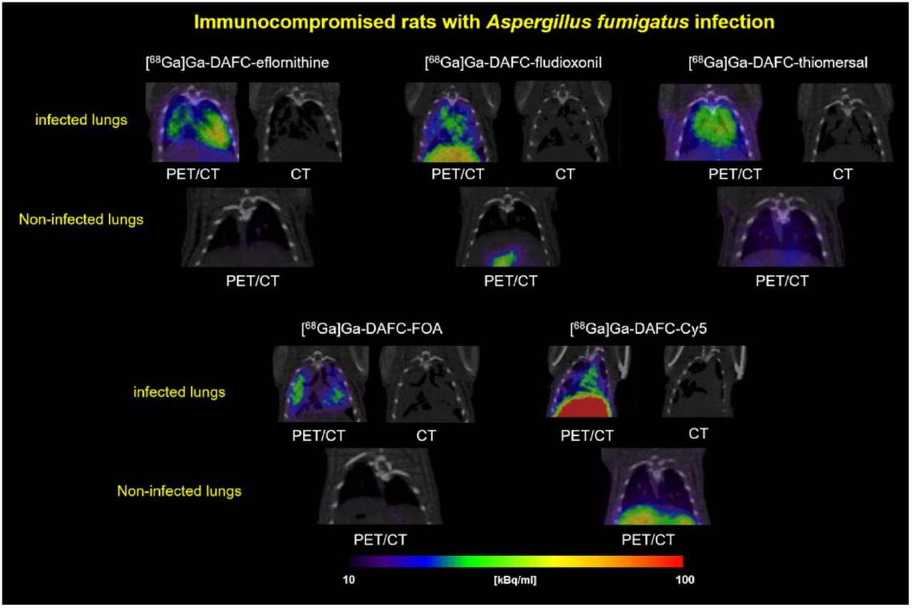 Coronal PET/CT slices of immunocompromised Lewis-rats infected with A. fumigatus in the lung. Pictures are showing the lung section of infected (top row) and non-infected (bottom row, control) rats of each compound respectively. Animals were injected retro-orbitally and pictures made after 45 min with approx. 5-12 MBq injected dose. CT images were added to show the severity of the infected lung tissue.
