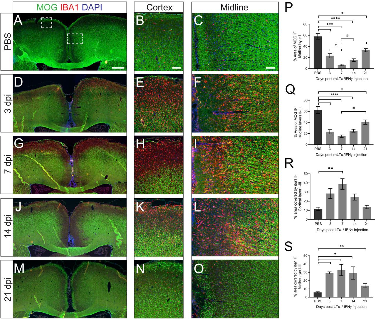 Subpial demyelination following injection of recombinant LTα+IFNγ into the subarachnoid space. (A-O) Immunofluorescence for myelin oligodendrocyte glycoprotein (MOG) and the microglial marker IBA1 in rmMOG immunised rats injected with PBS (A-C) or 1mg LTα and 75ng IFNγ recombinant cytokines culled at 3 (D-F) , 7 (G-I) , 14 (J-L) and 21 (M-O) days post-cytokine injection (dpi), demonstrating the degree of demyelination and microglial activation at various times points. Cortex and midline images are magnifications of the regions shown by the boxed areas in image A. Scale bars: A = 500µm, B and C = 50µm. (P-Q) Quantification of subpial demyelination at the injection site in layer I (P) and layers II-III (Q) , presented as the percentage area covered by MOG immunofluorescence (IF) (n=3-4 each group). Data is presented as the mean ± SEM. Statistics: 1-way analysis of variance with Tukey post-test. * P