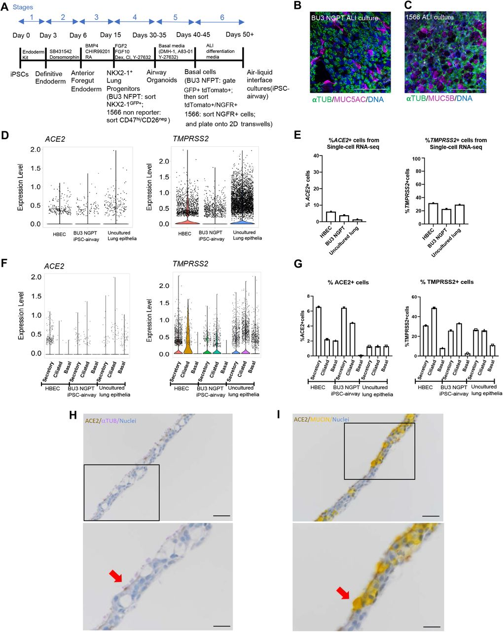 iPSC-derived airway cells express SARS-CoV-2 entry factors ACE2 and TMPRSS2 A) Schematic of the 6-stage differentiation protocol of generating iPSC-airway. B) Immunofluorescence analysis of BU3 NGPT iPSC-airway stained with anti-α-TUBULIN and MUC5AC (scale bar = 100 μm). Nuclei are stained with HOESCHT (blue). C) Immunofluorescence analysis of 1566 iPSC airway, stained with anti-α-TUBULIN and MUC5B (scale bar = 100μm). Nuclei are stained with DAPI (blue). D-G) scRNA-seq analysis of HBEC 40 , iPSC-airway (BU3 NGPT) 40 , and freshly isolated uncultured lung epithelia 42 . D) Violin plots of ACE2 and TMPRSS2 expression. E) The percentage of ACE2 and TMPRSS2 positive cells in each dataset 40 . F) Violin plots of ACE2 and TMPRSS2 expression by cellular type in each dataset. G) Comparison of the percentage of ACE2 and TMPRSS2 positive secretory, multiciliated, and basal cells in each dataset. H-I) Immunohistochemistry staining showing the localization of ACE2 (DAB), α-TUBULIN (purple, left panels) MUCIN (yellow, right panels) in iPSC-derived airway (BU3 NGPT) counterstained with hematoxylin (20x, scale bar =50μm). Lower panels are zoomed-in images of the black box in the upper panels. The red arrows indicated cells co-expressing ACE2/ α-TUBULIN (left) and ACE2/MUCIN (right) (scale bar =25μm).